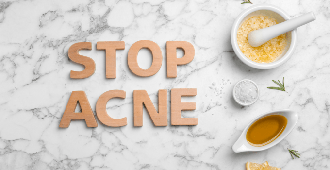 3 Powerful Home Remedies For Acne No One Told You About