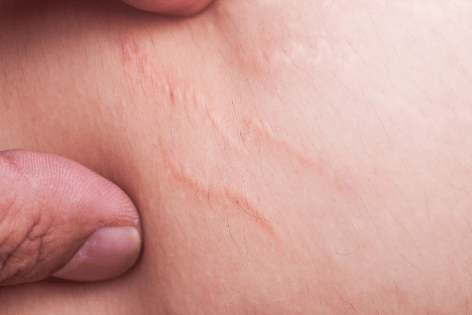 How Are Stretch Marks Formed?