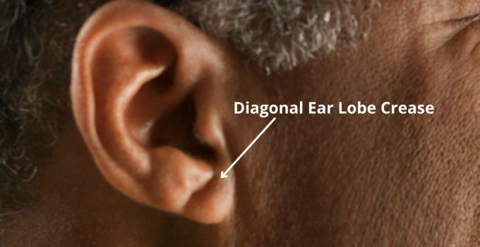 The ear lobe crease sign is not a myth. Very recent studies have proven that it is reliable at predicting future heart disease.